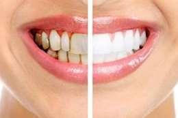 جير الاسنان