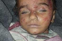 مقتل 10 أطفال على إدلب