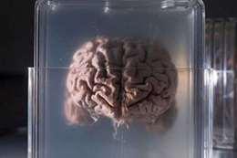 تجميد الأعضاء البشرية
