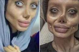 """الفتاة التي شوهت وجهها لتبدو مثل """"أنجلينا جولي"""""""