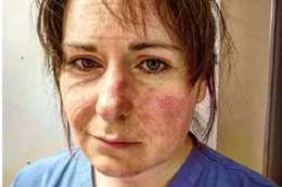 """تعاطف معها العالم .. رسالة من ممرضة """"القروح غطّت وجهها"""""""