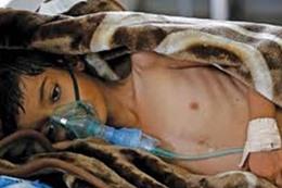 315 حالة وفاة بسب الكوليرا في اليمن