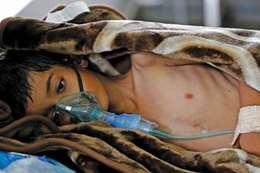 """""""الكوليرا"""" تصيب طفلًا كل دقيقة في اليمن"""