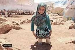 الطفلة السورية مبتورة الأقدام