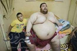 """أسرة مريض بالسمنة المفرضة فى الغربية تدق باب """" وزير الصحة """" بعلاجة"""