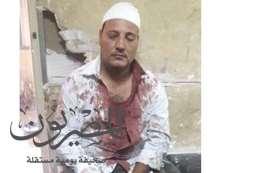 """اصابة أمين شرطة بـ """" 41 غرزة """" بعد الاعتداء علية من قبل بلطجية فى المحلة الكبرى"""