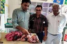 الطفلة التوأم مع الطاقم الطبي
