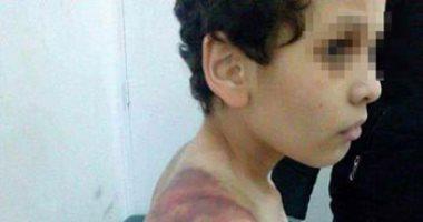 تغيب المتهمة بتعذيب طفل الشروق عن أولى جلسات محاكمتها