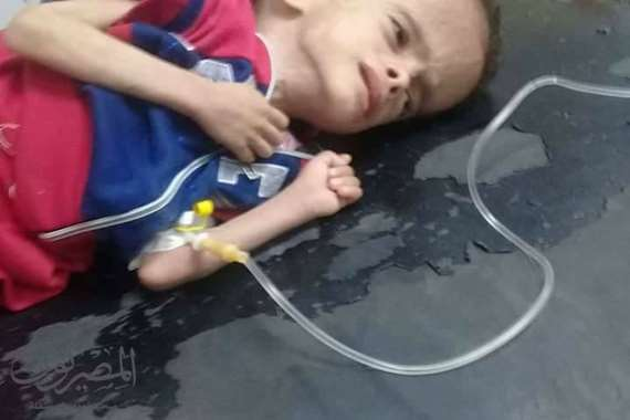 بالصور والمستندات الطفل ياسين ابن الاسكندرية يصارع الموت