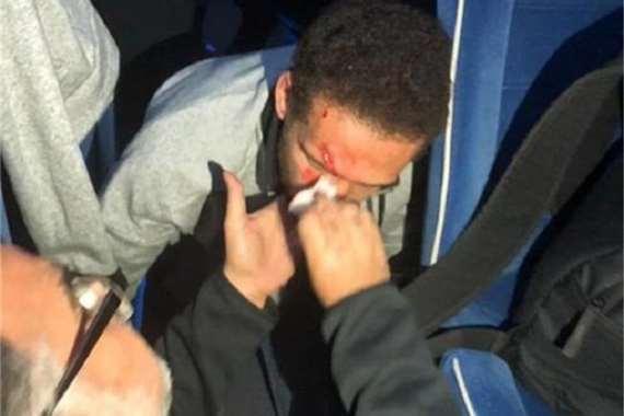 إصابة هشام محمد