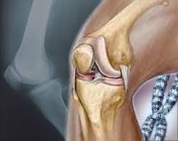 المؤتمر السنوى الأول لجراحة العظام ينعقد في طب عين شمس