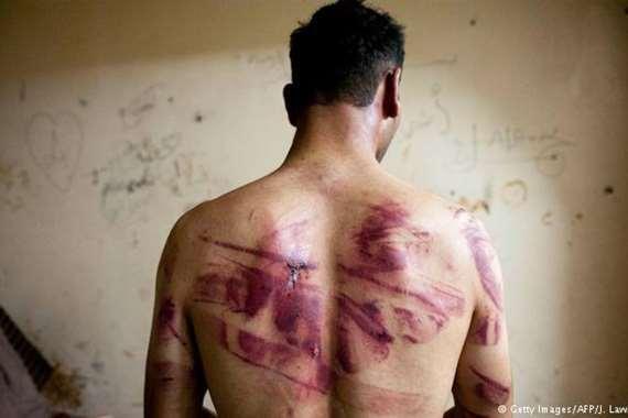 التعذيب في سوريا